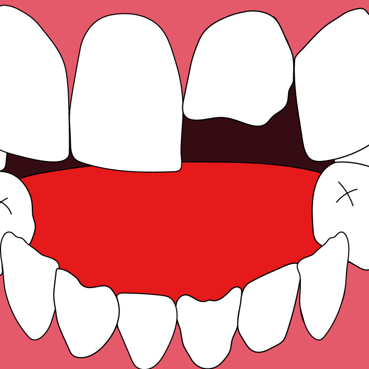 Kaelen Felix Illustrates a Dental Article for 360 MAGAZINE