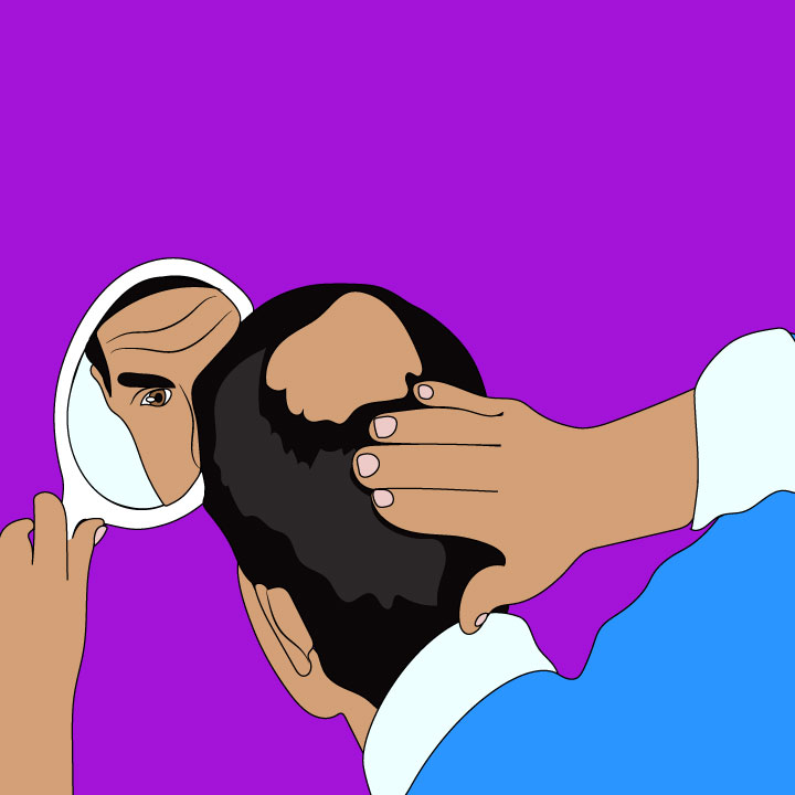Male pattern baldness article illustration for 360 magazine by Kaelen Felix